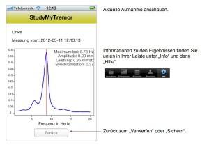 Tremor4